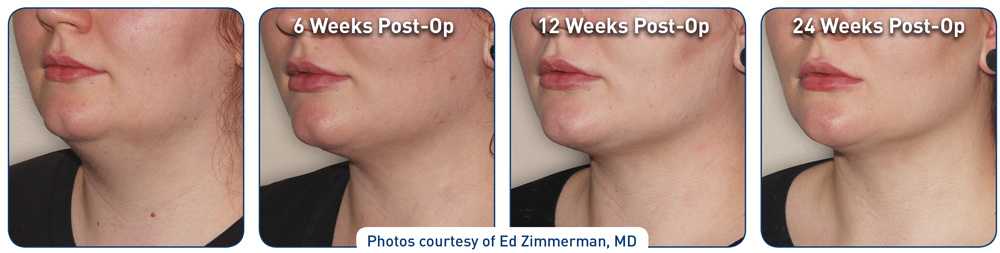 before-after-neck