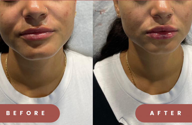 russian-lips-before-after